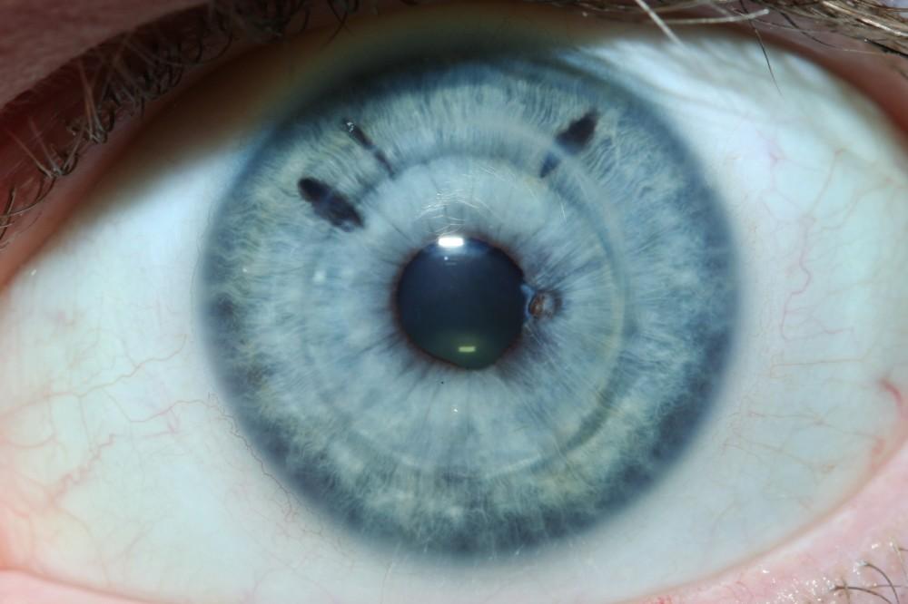 iridology certification