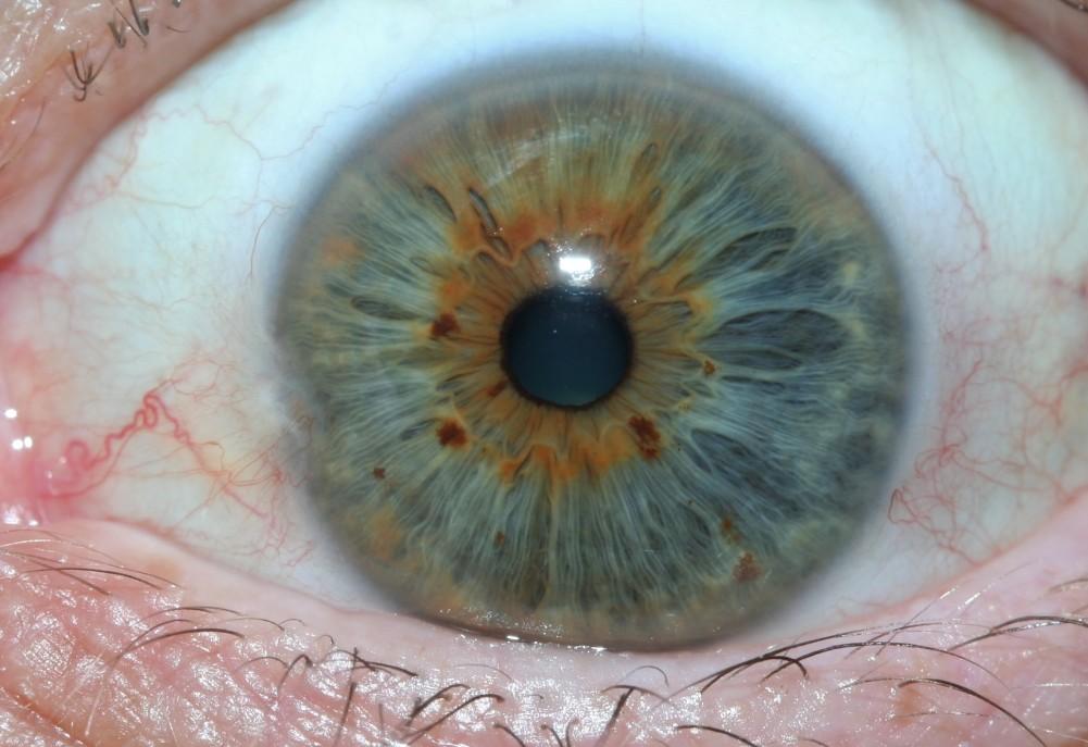 iridology real